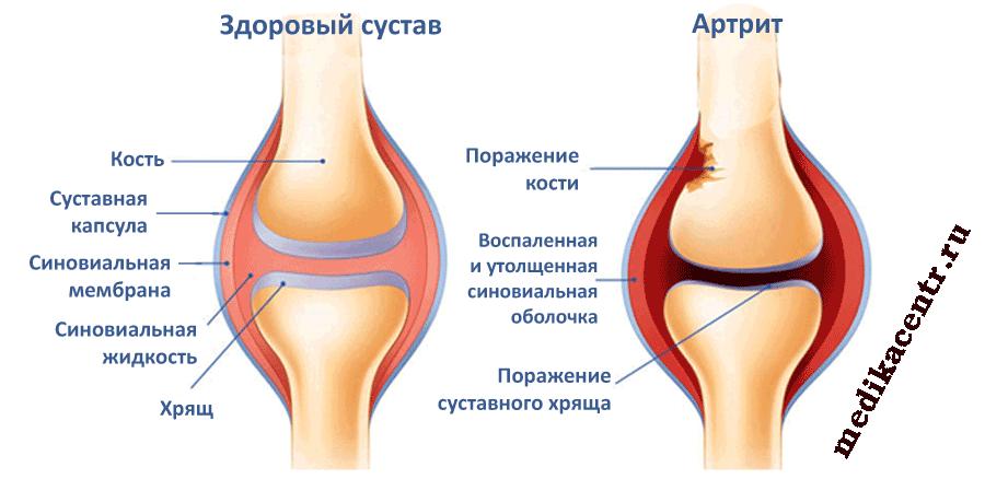 vidy-i-simptomy-artrita