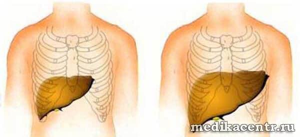 Причины и лечение увеличенной печени