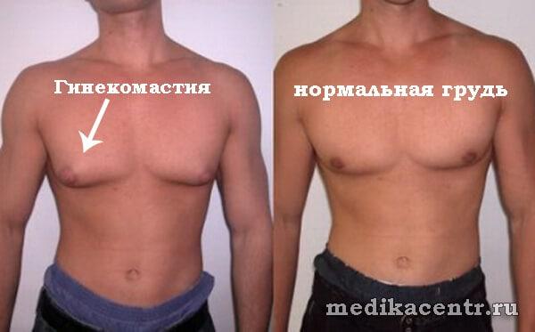 Большие соски гинекомастия у мужчин