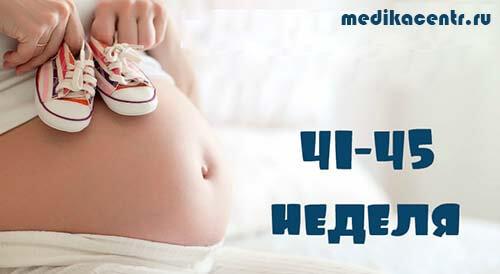 Переношенная беременность