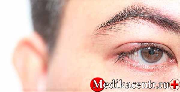 Средства от ячменя на глазу