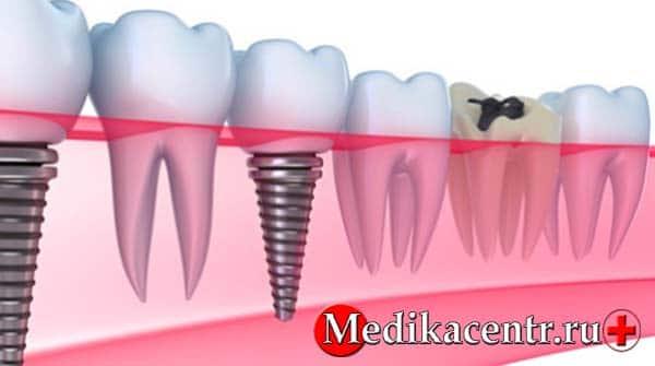 Имплантация зубов: Эталон красоты