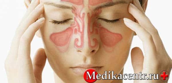 Гайморит причины, симптомы и лечение