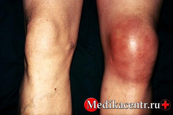 Травматология бурсит коленного сустава массаж для ног при артрозе коленного сустава