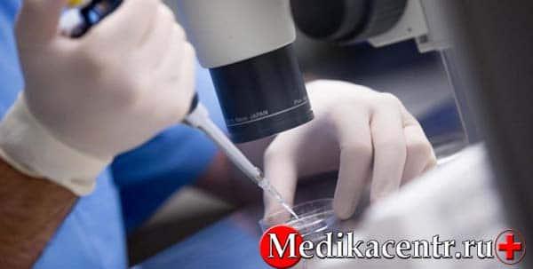 Процедура проведения пункции фолликулов