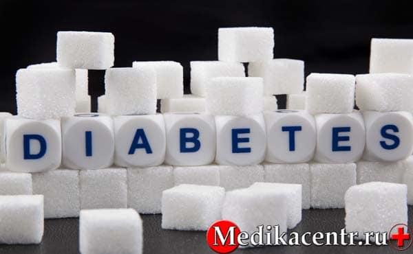 Какие существуют типы диабета