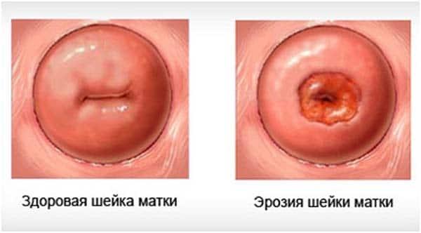 Способы лечения эрозии шейки матки