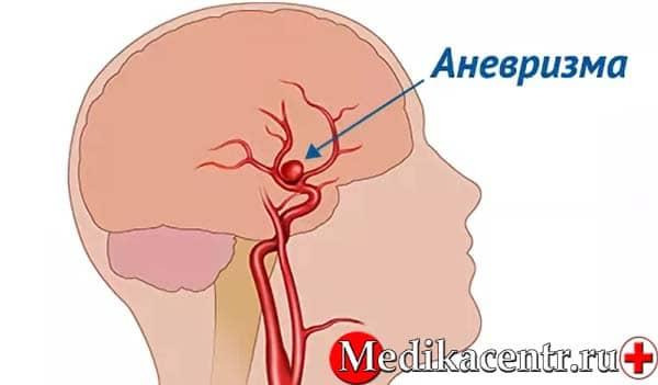 Что такое аневризма