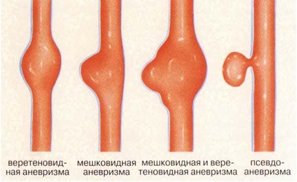 Какие существуют виды аневризмы