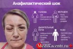 Анафилактический шок первая помощь