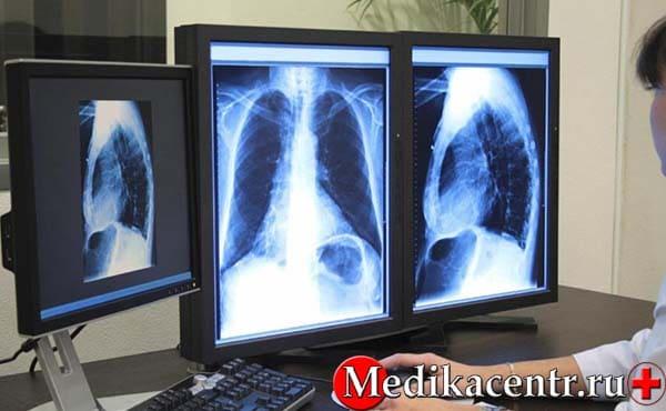 Какие исследования проходят для постановки диагноза «туберкулёз»