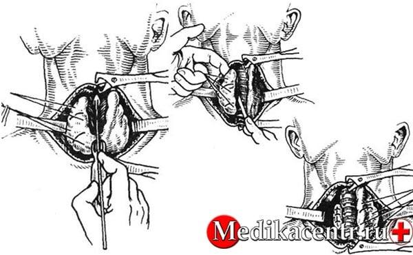 Как проводится тиреоидэктомия