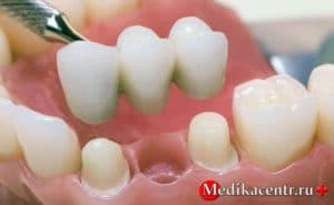 Несъемные коронки на зуб
