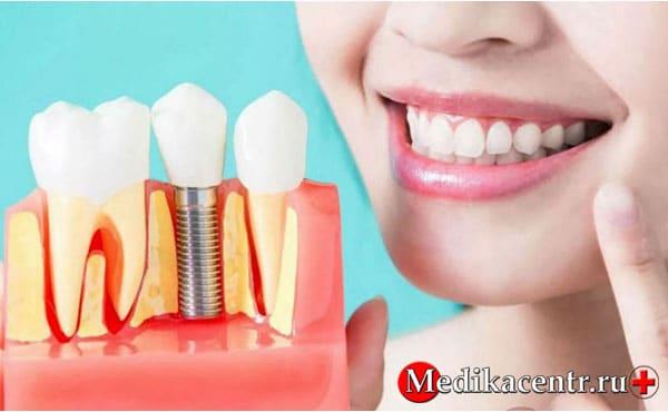 Возможные риски и осложнения после имплантации зубов